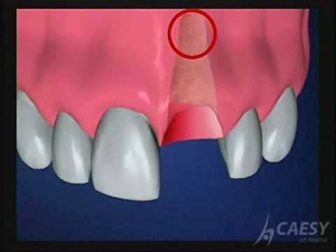 Immediate Load Implants Overview courtesy of the Harpaz Institute of Dental Implants