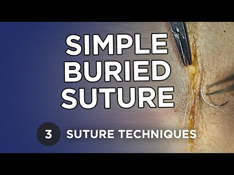 Simple Buried Suture - Learn Suture Techniques