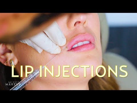 Natural-Looking Lip Injections! | The SASS with Susan and Sharzad