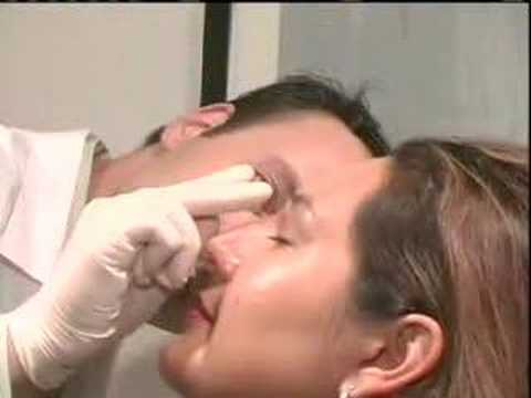 The 15 Minute Nose Job (Rhinoplasty) by Dr Rivkin