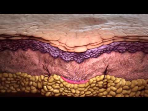 HOW Does Sculptra Work?
