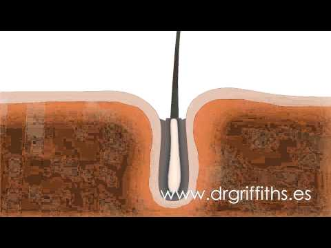 FUE Hair Transplant - Animation