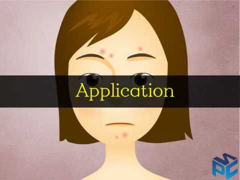 Platelet Rich Plasma Animation Video (PURE PRP) (PNC INT, South Korea)