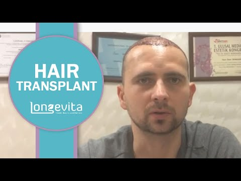 Hair Transplant in Izmir Turkey | Longevita