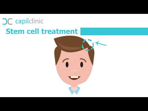 Stem cell treatment - Hair transplant in Turkey - Capilclinic