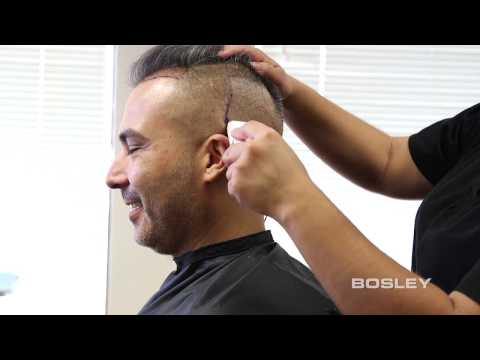 BOSLEY FUE (Follicular Unit Extraction): Hair-by-Hair Restoration from Bosley (How it's done)