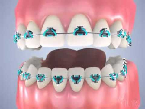 Complete Orthodontic Treatment