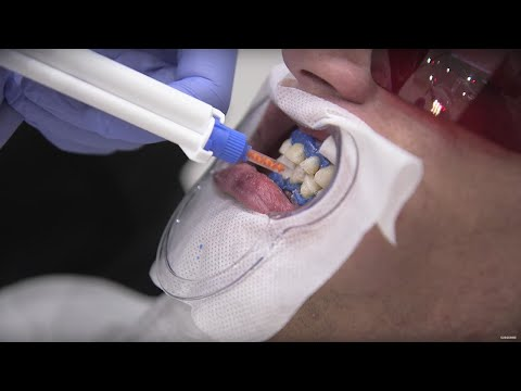 Can Tooth Whitening Hurt Your Teeth? | Earth Lab