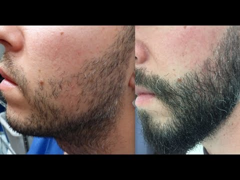 801 FU's. Beard Hair Transplant by FUE Technique. 1420/2015