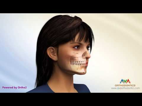 Surgical Orthodontic Treatment - Different Procedures