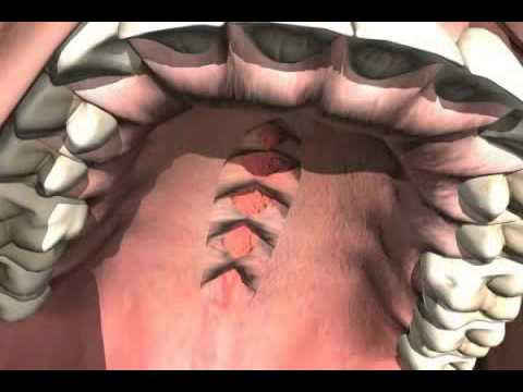 What is the treatment of Cleft Palate?