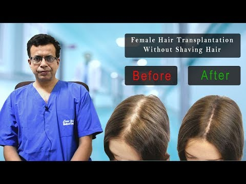 Female Hair Transplantation in Delhi Without Shaving by Dr.Sandeep Bhasin | Care Well Medical Centre