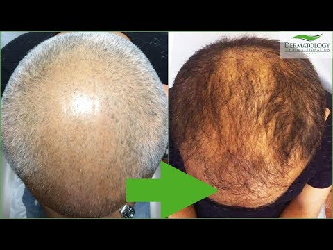 PRP Stem Cell - Results after ONE TREATMENT - Los Angeles