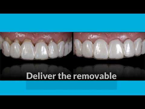 Preview Spear Online Course - 6 Steps to Creating a Removable Veneer Temporary