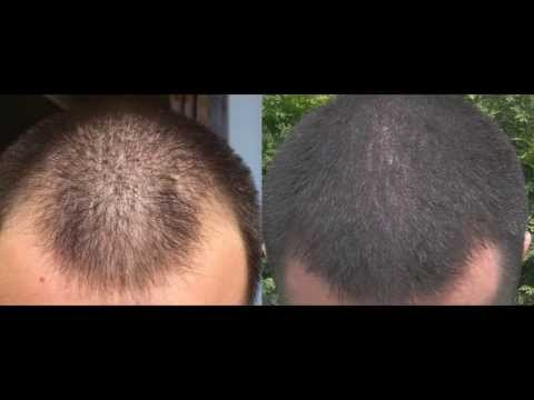 1 year minoxidil hair regrowth results, before and after. 2013!