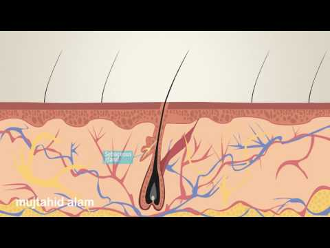 how pimple formed animation