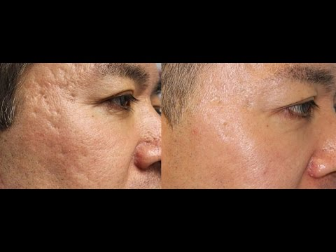 Amazing Laser Acne Scar Removal Results!