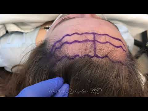 Forehead Reduction / Hairline Advancement with Before and After Photos - Dr. Matthew Richardson