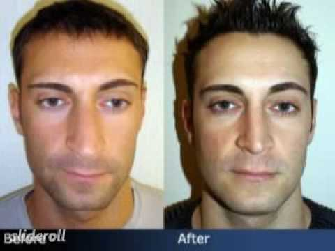 Nose Job Before & After - Male Rhinoplasty in NYC