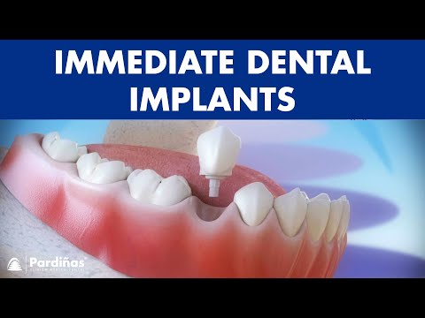 Immediate dental implants post-extraction for tooth replacement ©