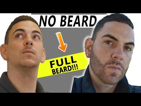 Beard Hair Transplant 4000 Grafts Before and After!