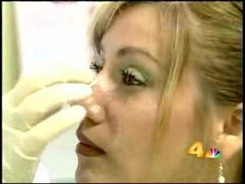 Non Surgical Nose Job in Los Angeles