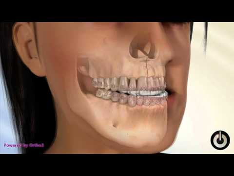 Orthognathic Surgery to Reduce Severe Underbite in Toronto