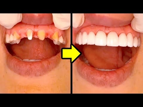 HOW TO GET HOLLYWOOD SMILE