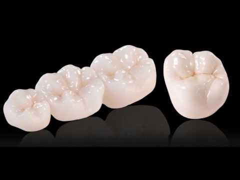 Dental Crown Types. Which is Best? | Seoul Guide Medical