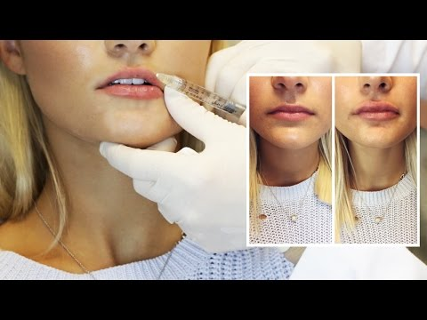 Lip Filler Experience | Start to Finish with 1 Syringe of Juvederm