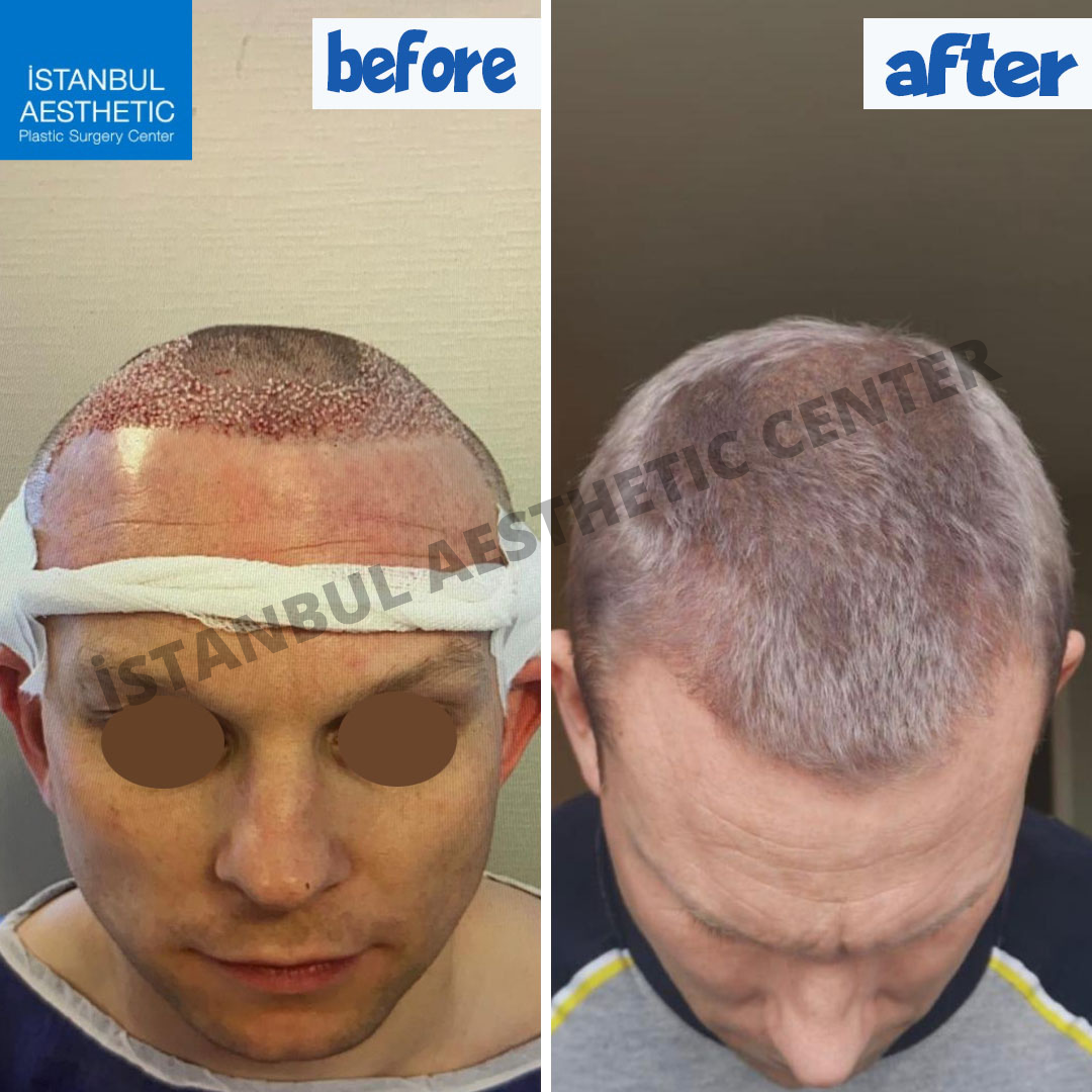 Hair-Transplant- before after 2