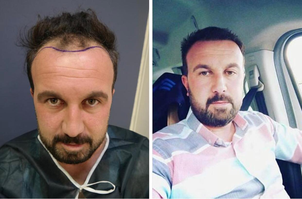 Hair-Transplant- before after 3