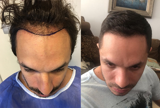 Hair-Transplant- before after