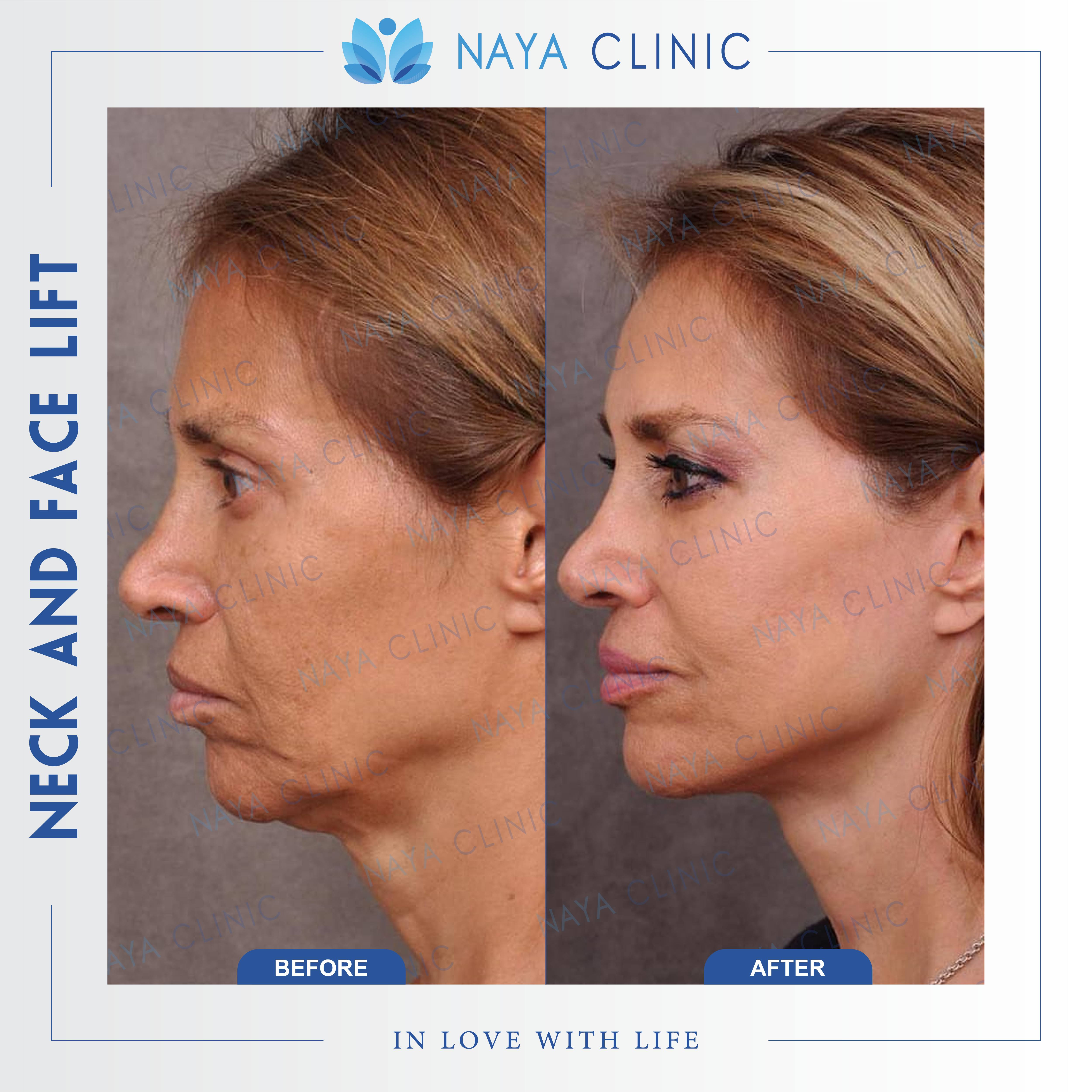 NECK AND FACE LIFT (4)