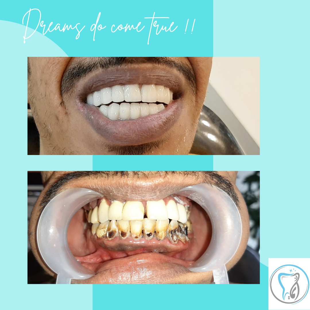 Your Dream Smile Can Now Be a Reality (5)
