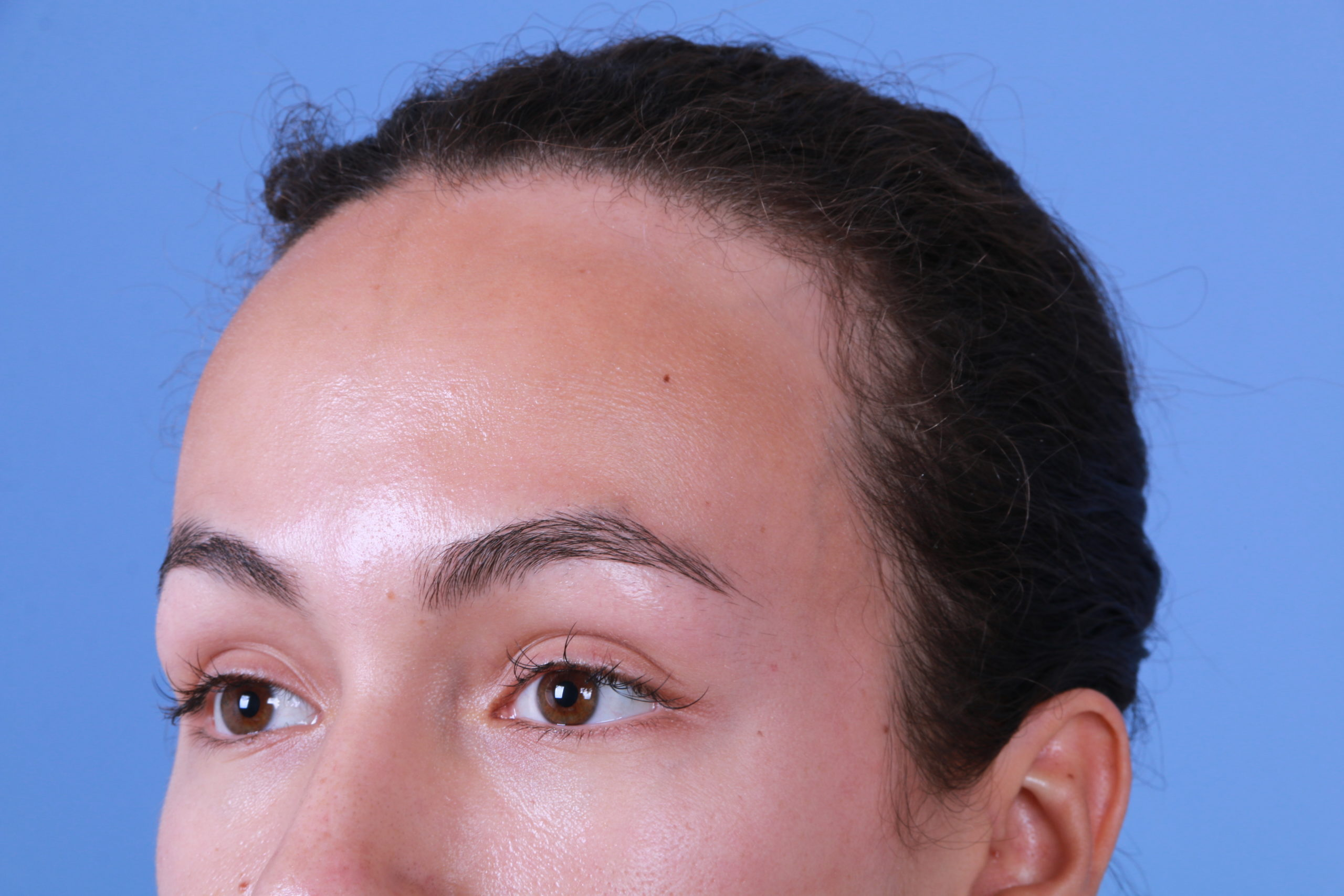 Forehead reduction Before