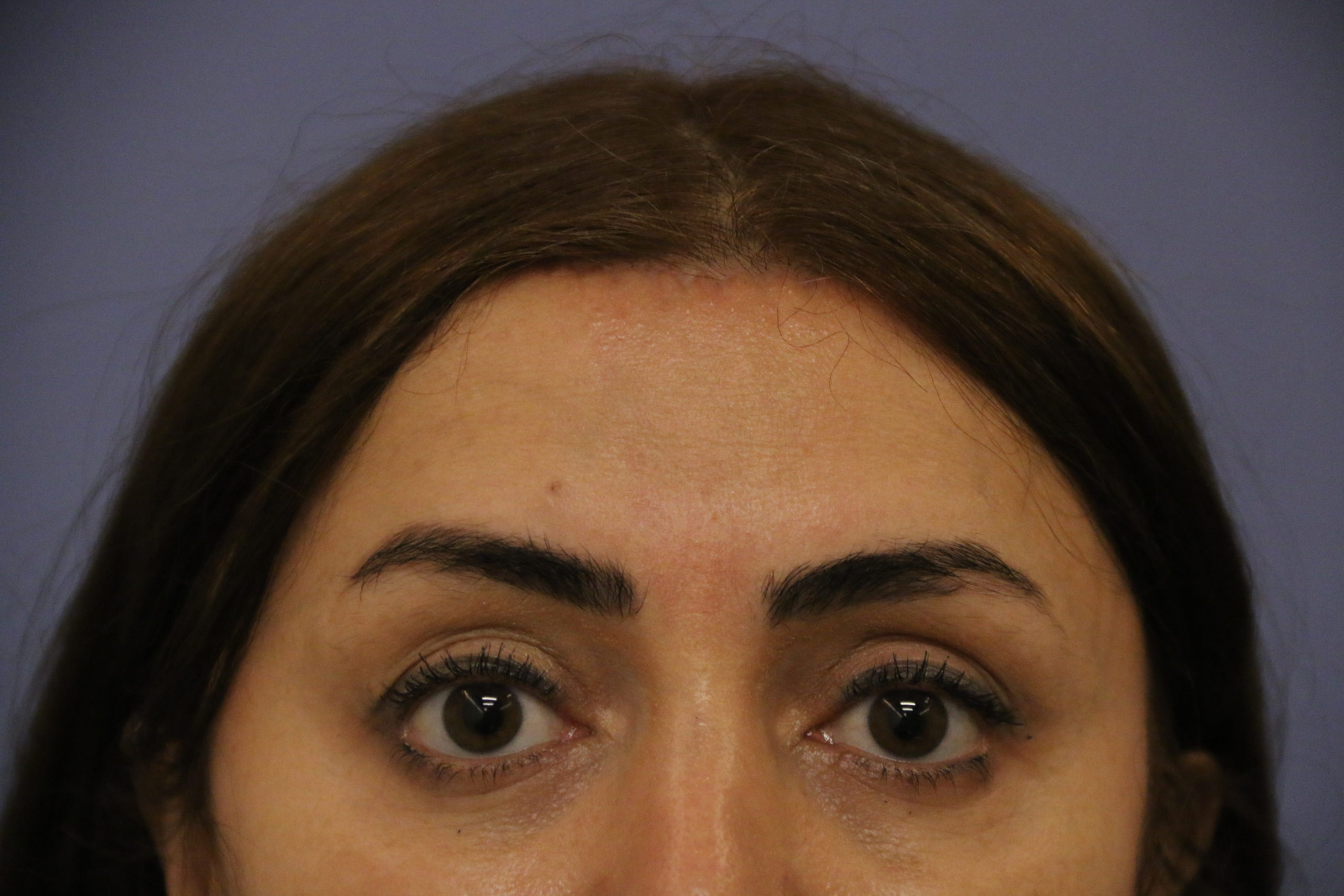 Forehead reduction 2 months post op